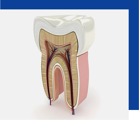 Cura delle carie a Torchiara | Dentista a Torchiara | Ceida Centro Odontoiatrico