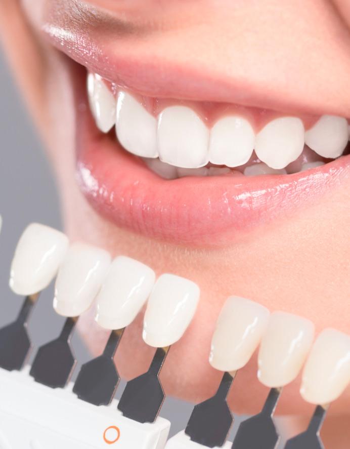 Faccette dentali a Torchiara | Faccette estetiche a Torchiara | Dentista a Torchiara | Ceida Centro Odontoiatrico