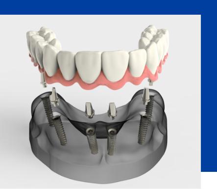 Implantologia dentale a Torchiara | Dentista a Torchiara | Ceida Centro Odontoiatrico