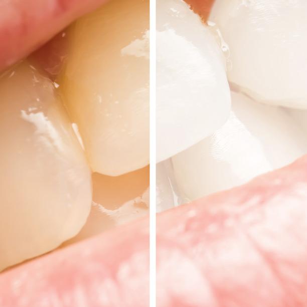 Come avere un bel sorriso | Dentista a Torchiara | Ceida Centro Odontoiatrico