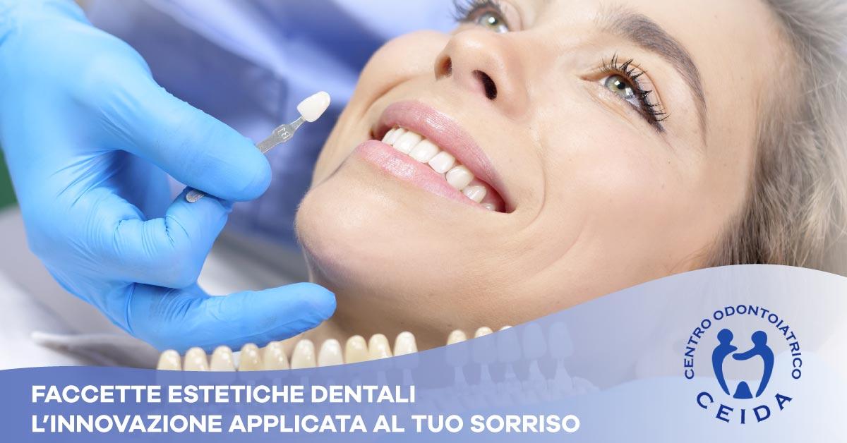Faccette estetiche dentali | Dentista a Torchiara | Ceida Centro Odontoiatrico